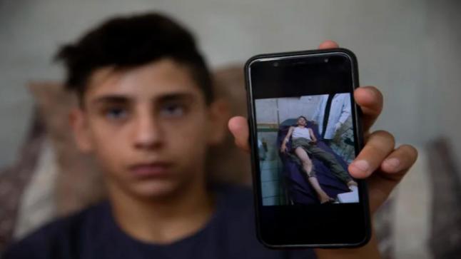مراهق فلسطيني يصف الهجوم من قبل المستوطنين الإسرائيليين